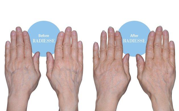 hands.jpe